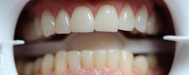 Стоимость протезирования зубов - фото