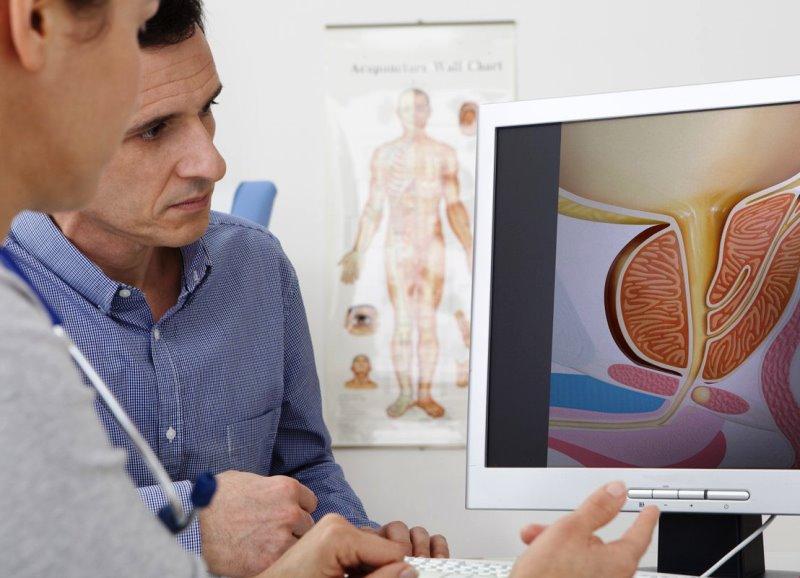 основные причины возникновения простатита - фото