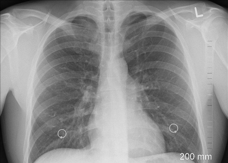 Рентген легких - фото