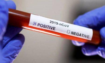 51 человек заболел коронавирусом в Беларуси, данные на 18.03.2020 - фото