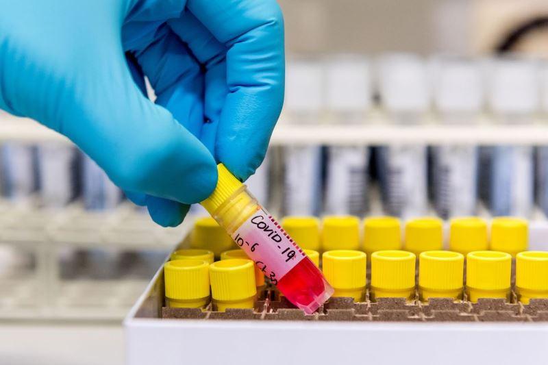 Тесты на коронавирус в Беларуси - фото