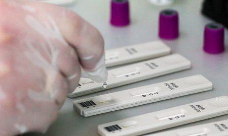 COVID-19 в Беларуси, экспресс-тесты на антитела к коронавирусу - фото