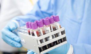 Кровь, вылечившийся от ВИЧ - фото